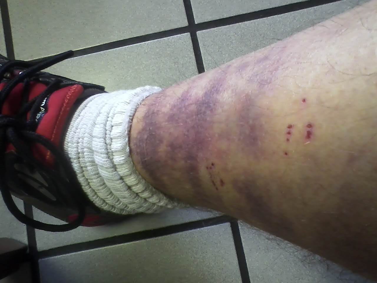 Image of badly bruised shin
